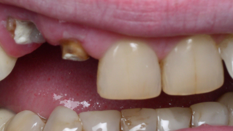 Что делает художественная реставрация зубов