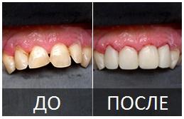 художественная реставрация зубов. фото